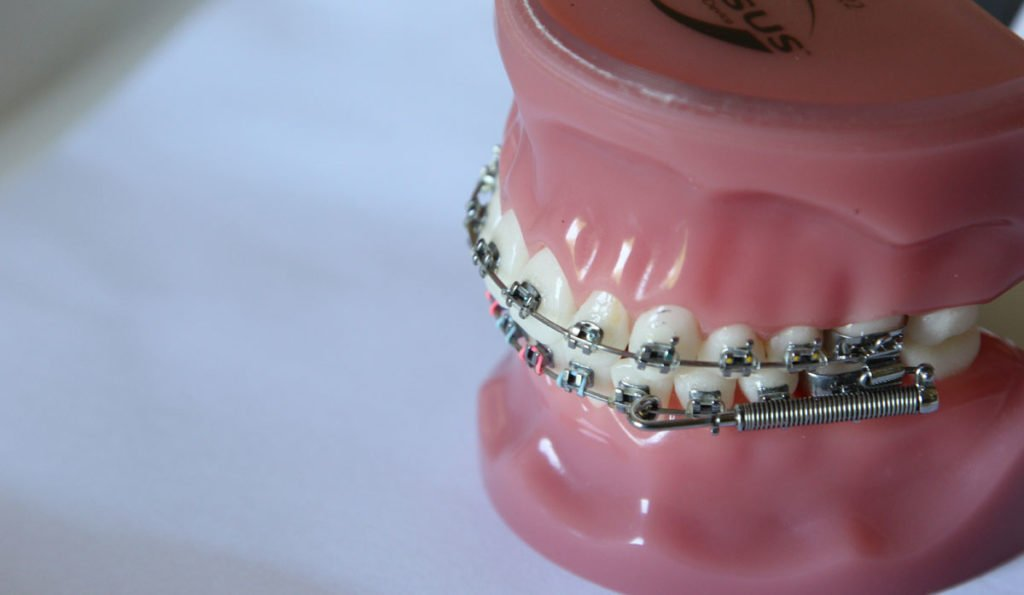 braces-15_witherow-orthodontics_hermitage-tn